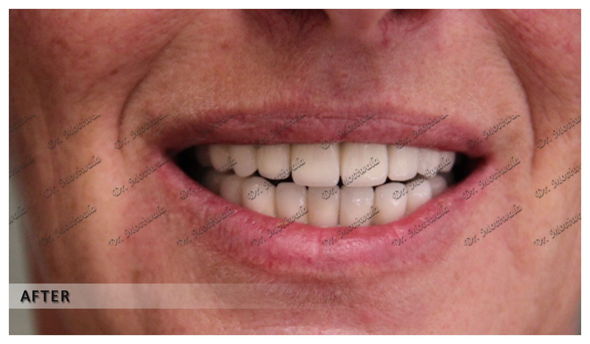 full mouth dental implants before and after