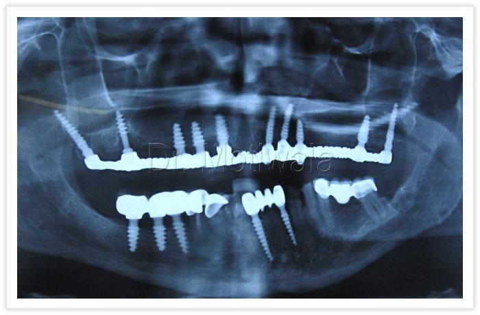 Upper Jaw Full Arch