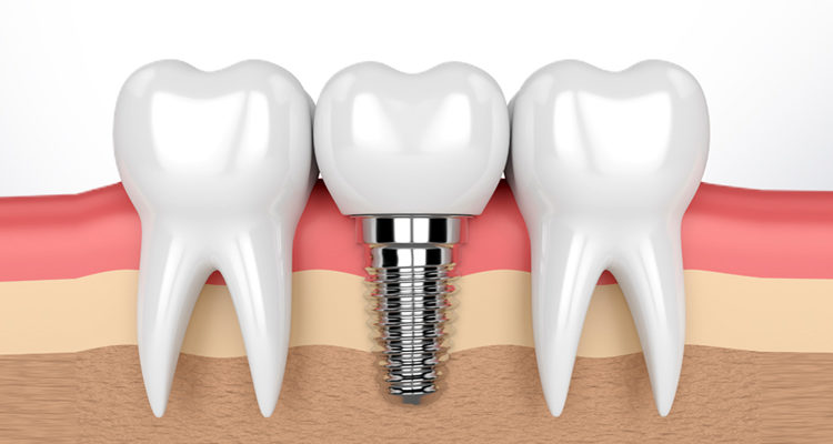 basal implants in Hyderabad