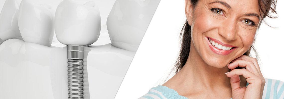 affordable dental implants in hyderabad