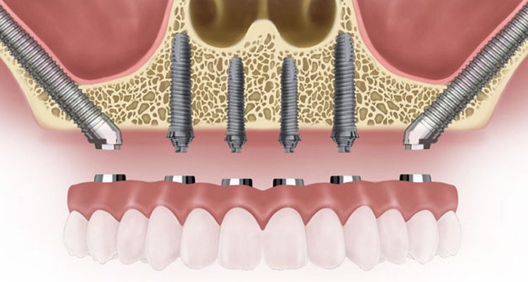 zygomatic implants cost