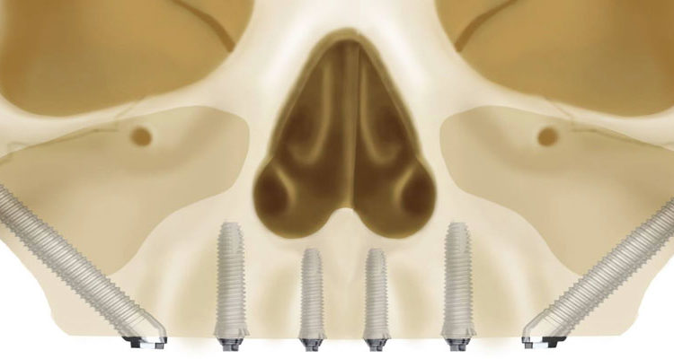 benefits of zygomatic implants