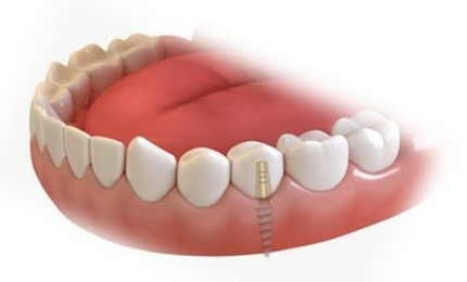 FULL MOUTH DENTAL IMPLANTS COST Single Tooth Implant