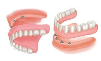 FULL MOUTH DENTAL IMPLANTS COST Implant Dentures with 4 dental implants per arch