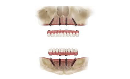 FULL MOUTH DENTAL IMPLANTS COST All on 4 with 4 dental implants per arch
