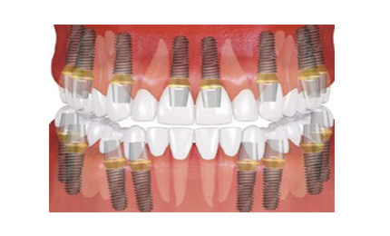 FULL MOUTH DENTAL IMPLANTS COST All on 8 with 16 dental implants full mouth