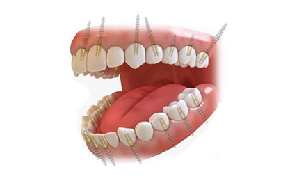 FULL MOUTH DENTAL IMPLANTS COST Permanent teeth in 3 days