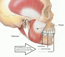 Pterygoid Implant Procedure & Cost