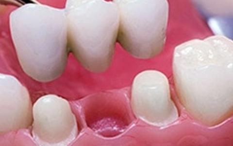 Bridges on Teeth