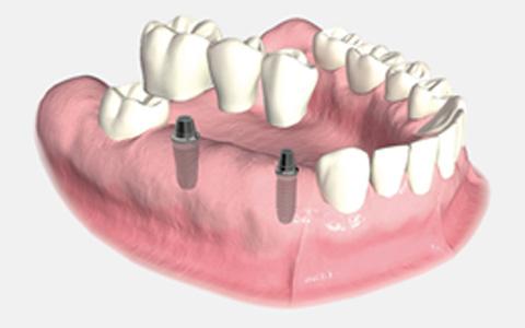 Implant-Supported Bridges