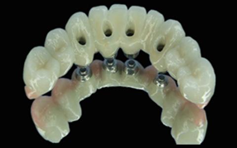 Implant Types