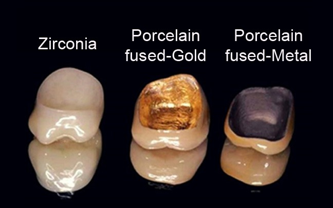 Types of Crowns